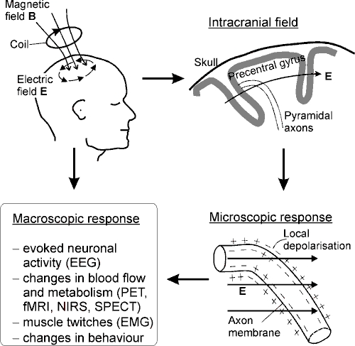 Transcranial Magnetic Stimulation: Modelling and New ...
